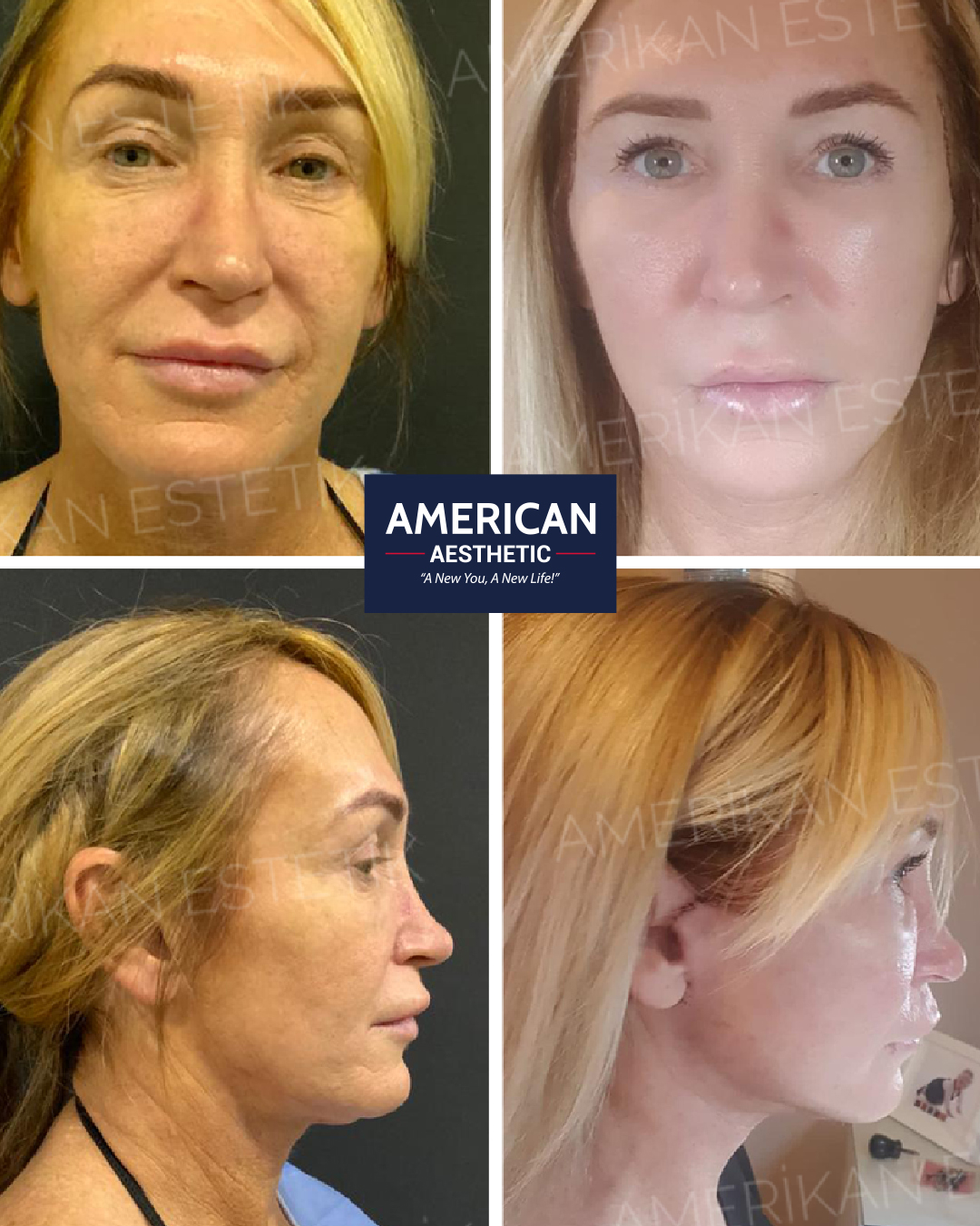 Face Lift with High Intensity Focus Ultrasound