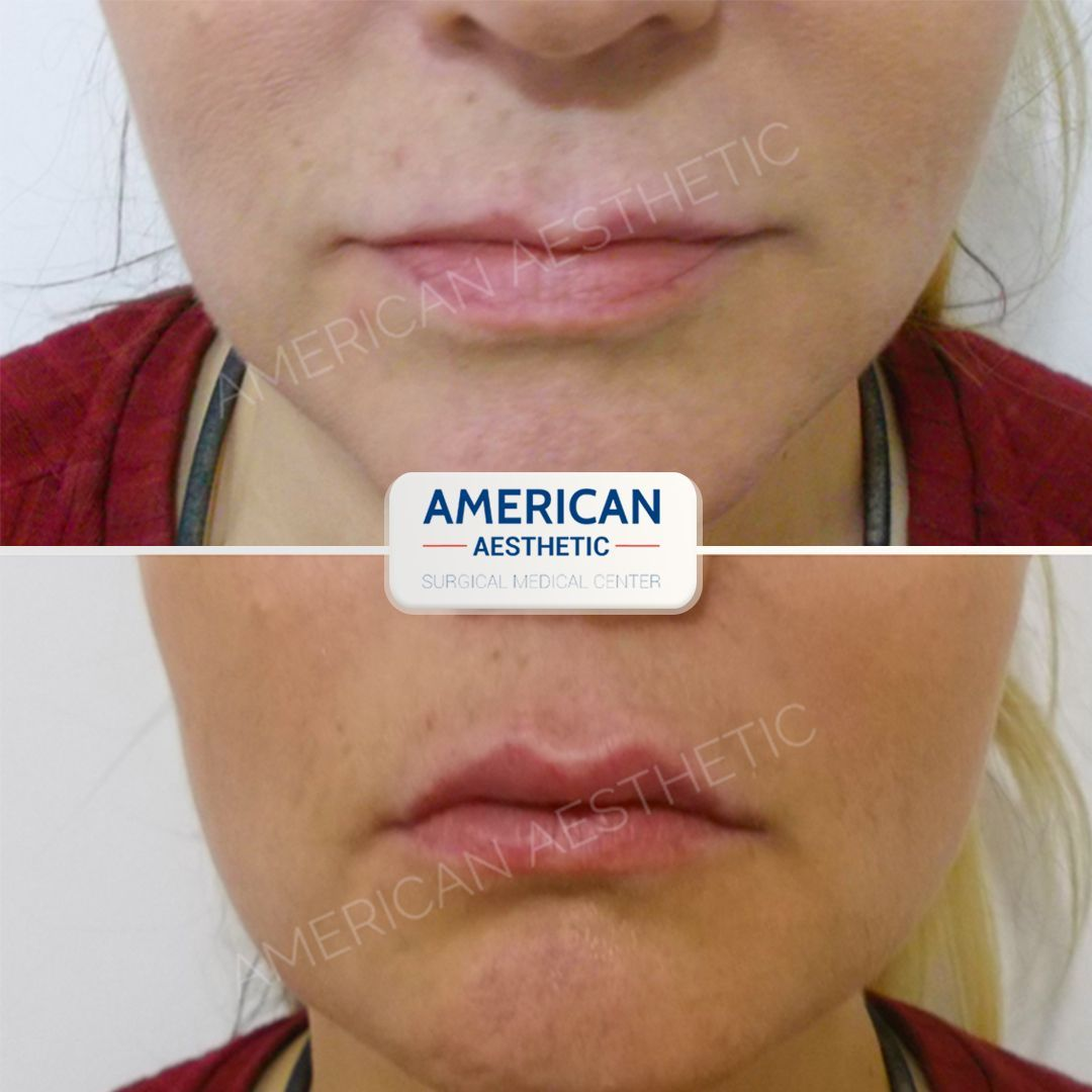 Lip Augmentation Treatment