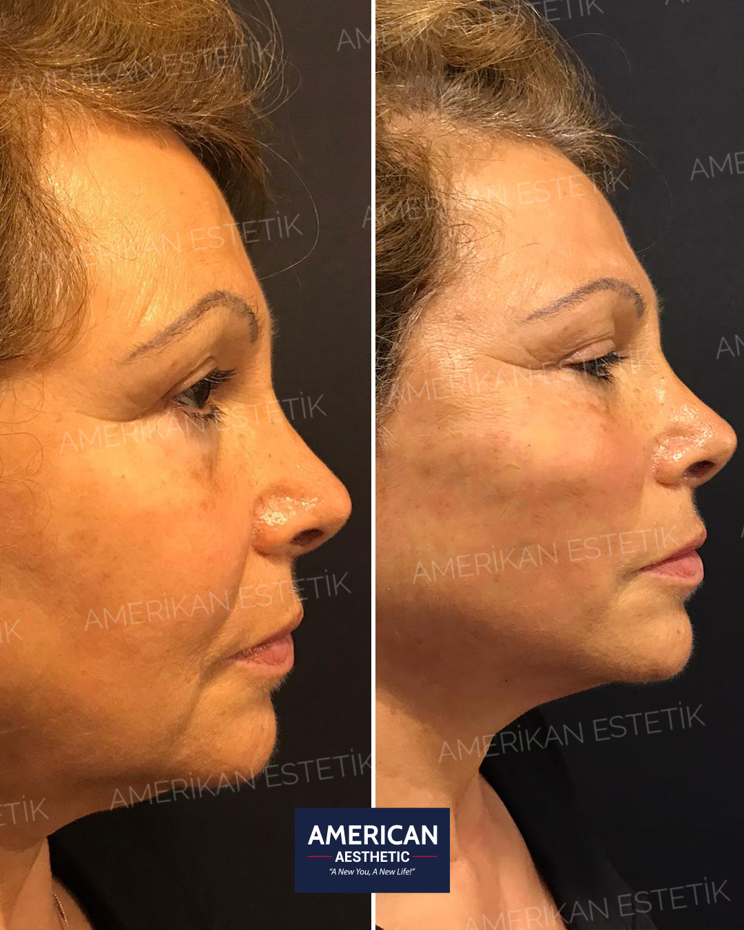 Face Lifting without surgery