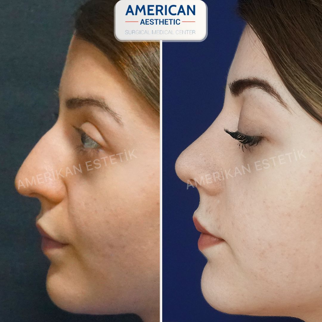 Rhinoplasty / Nose Aesthetics Treatment
