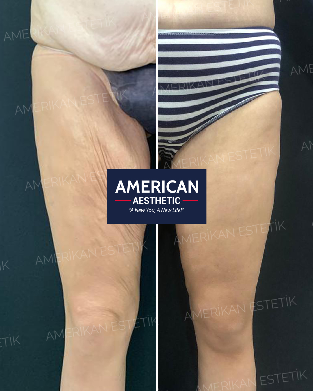 Hand, Arm and Leg Aesthetics Treatment