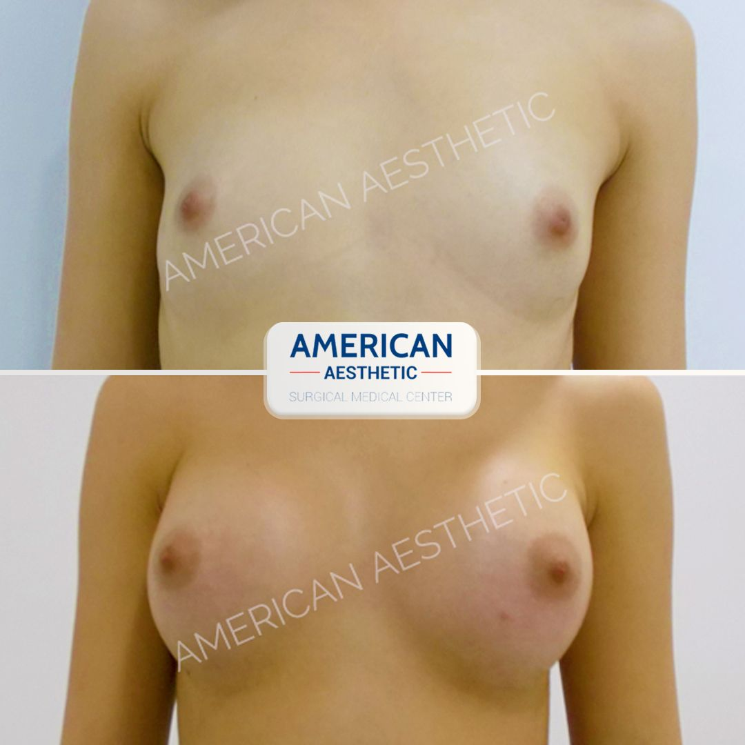 Breast Enlargement Aesthetics Treatment