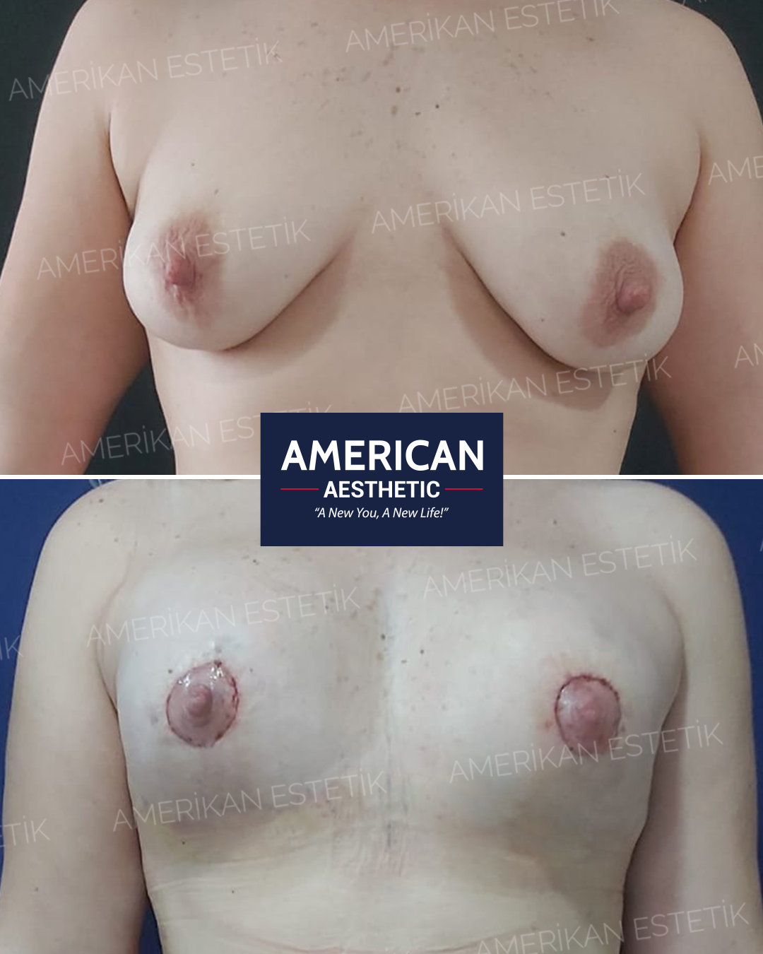 Aesthetic of Breast Lifting Treatment