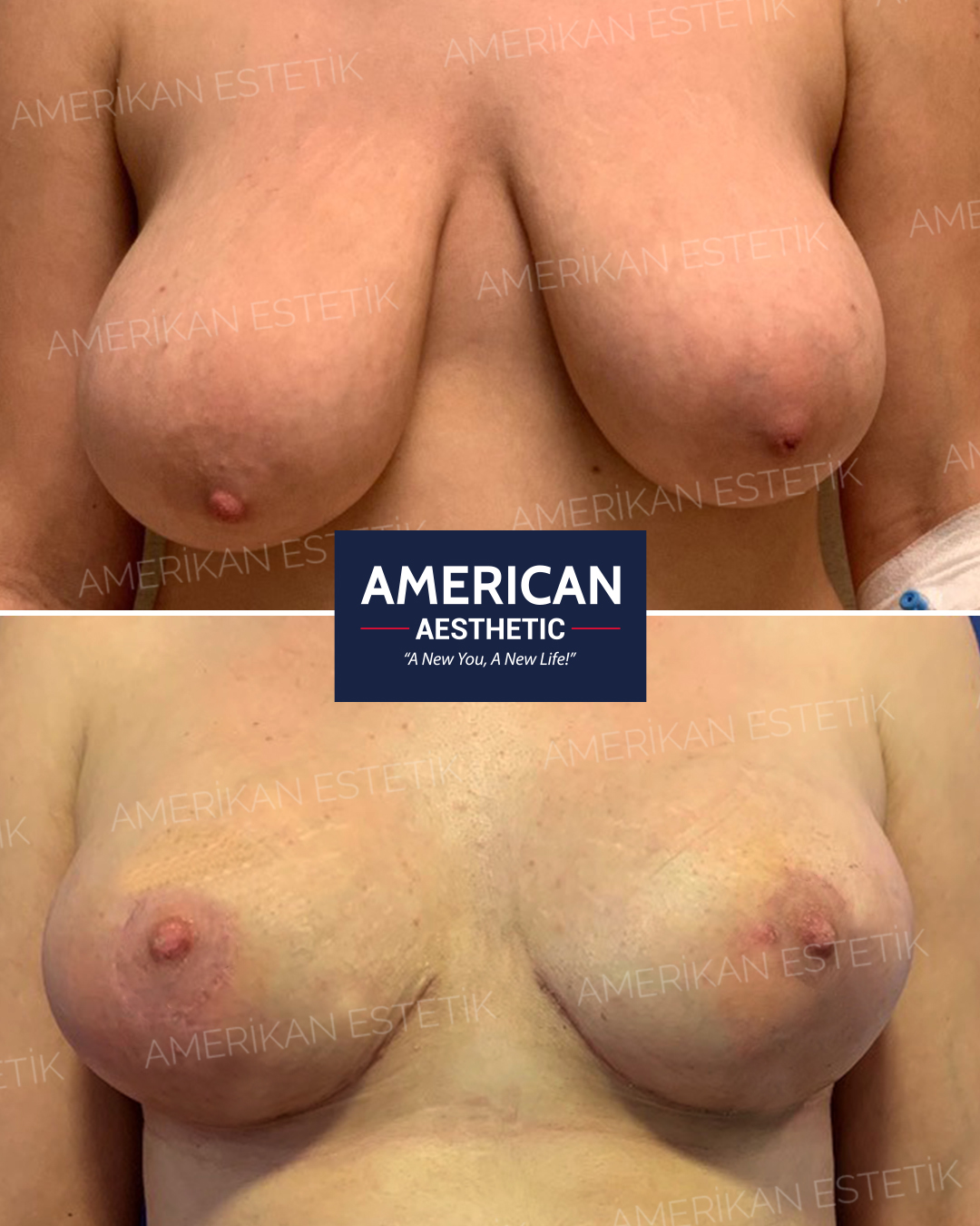 Breast Reduction Aesthetics Treatment