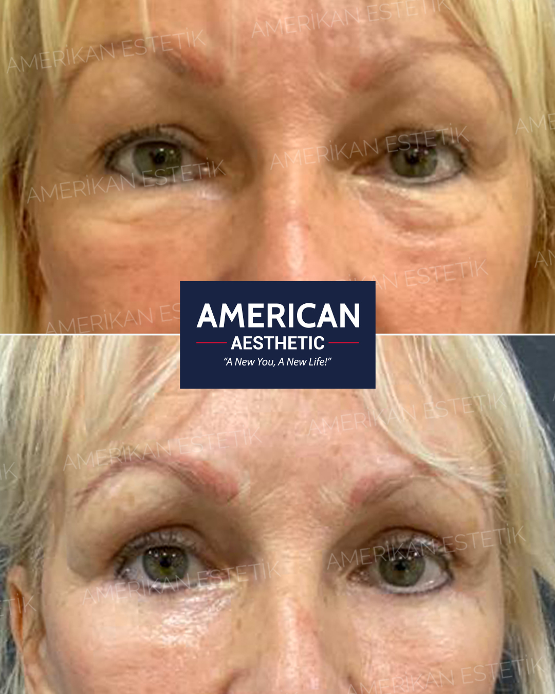 Eye Contour Aesthetics Treatment