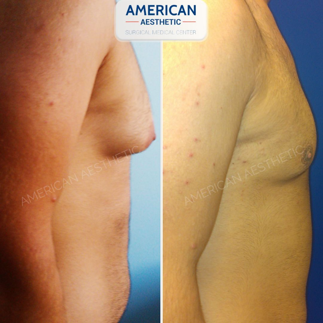 Gynecomastia Aesthetics Treatment