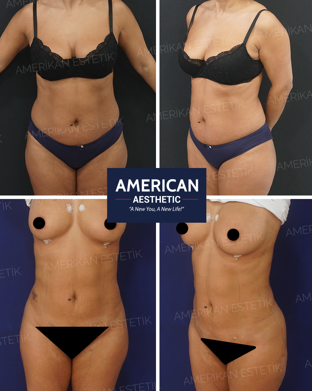 Liposuction Aesthetics Treatment