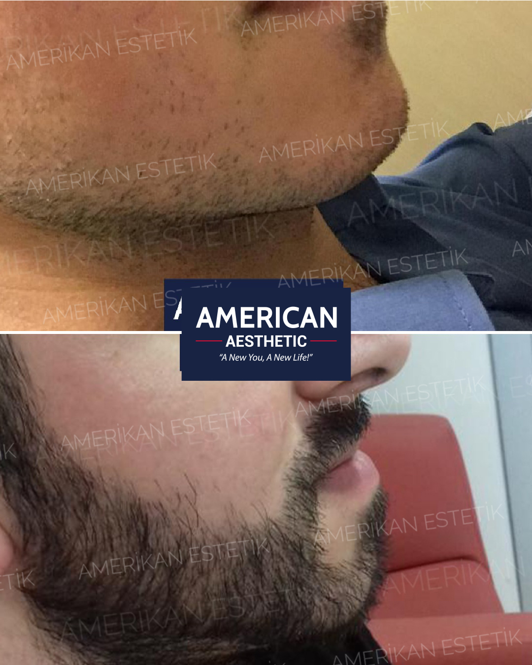 Beard Transplantation Treatment