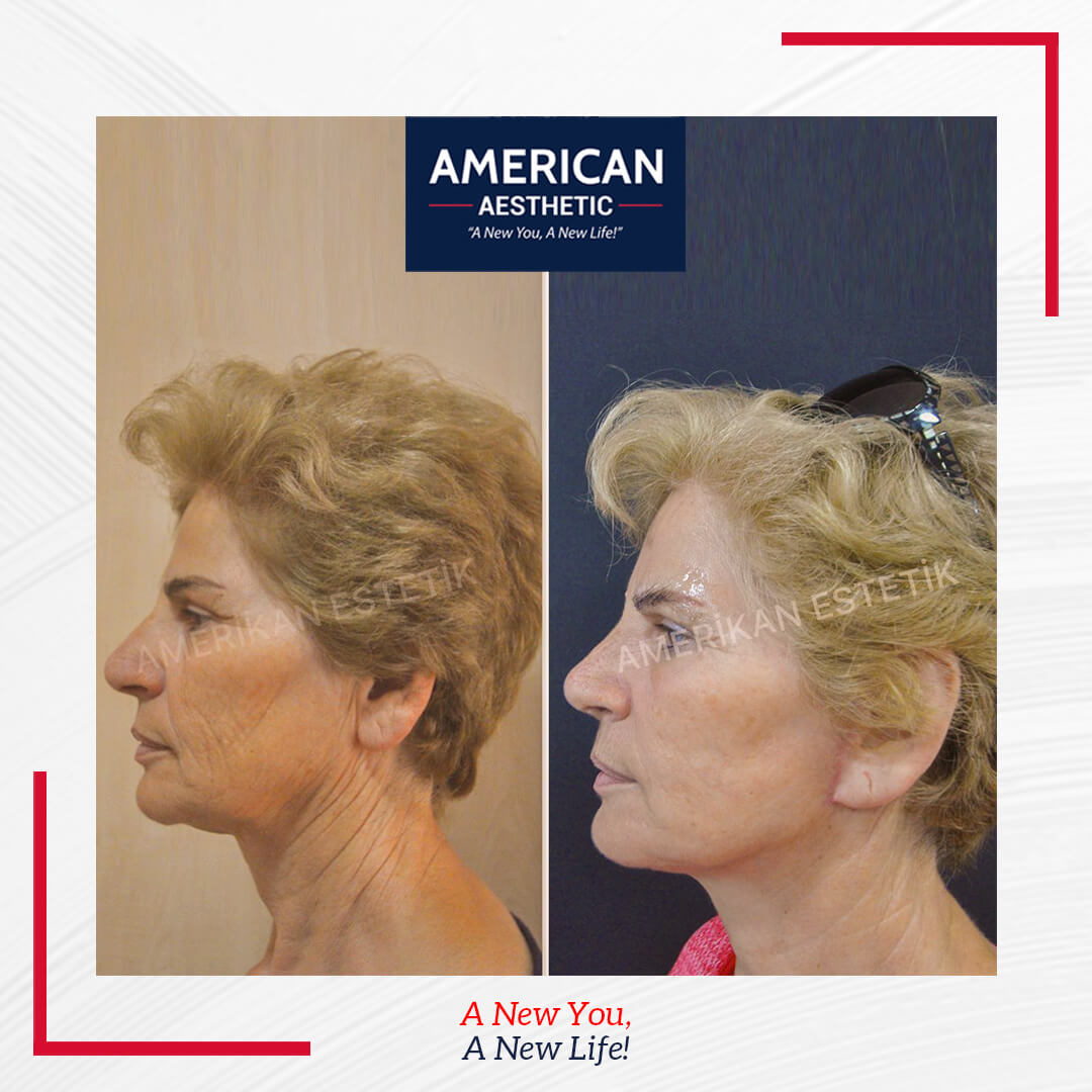Aesthetic of Facial Shaping Treatment