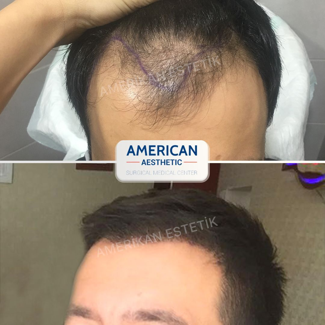Hair Transplantation Treatment Treatment