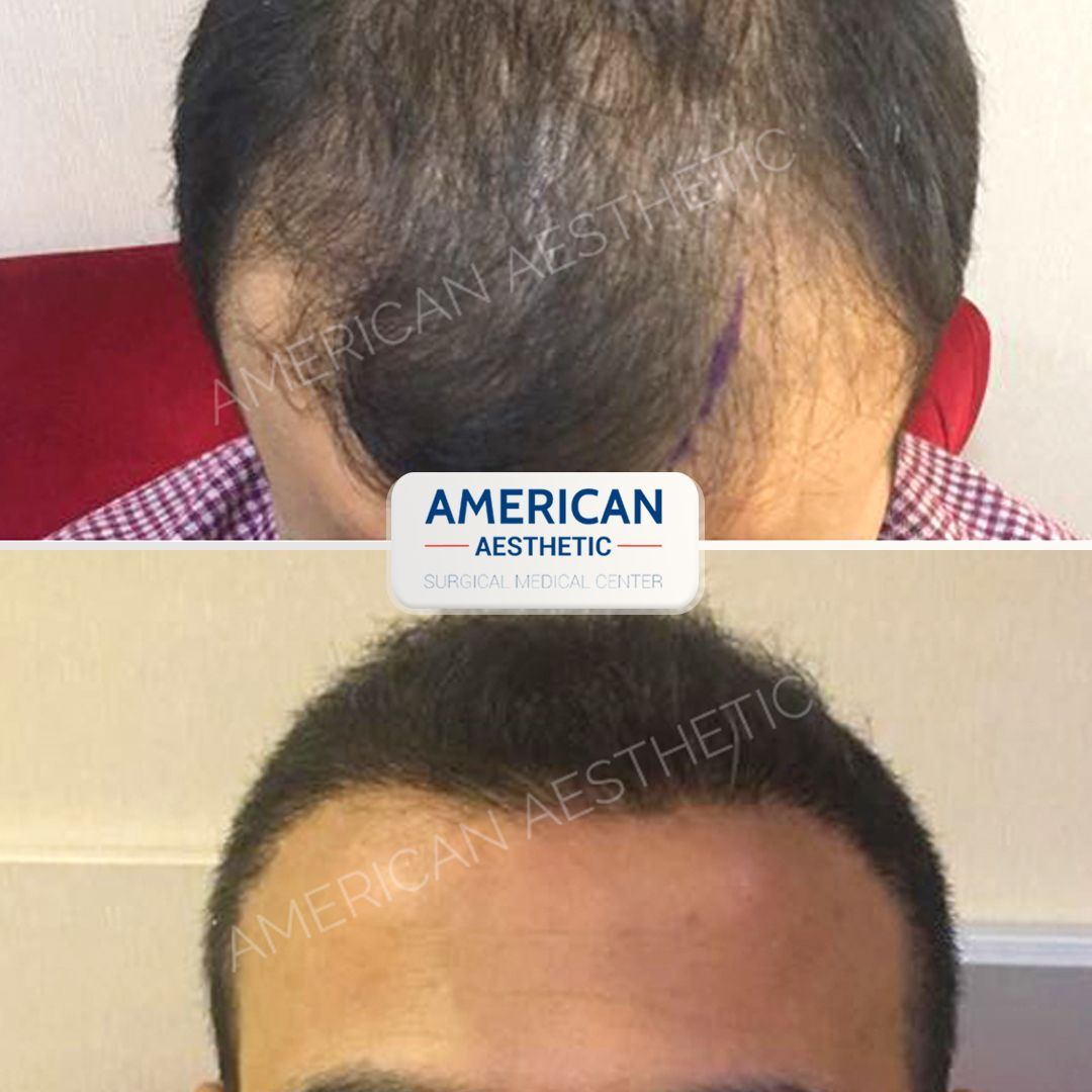 Unshaven Hair Transplantation FUE Method Treatment